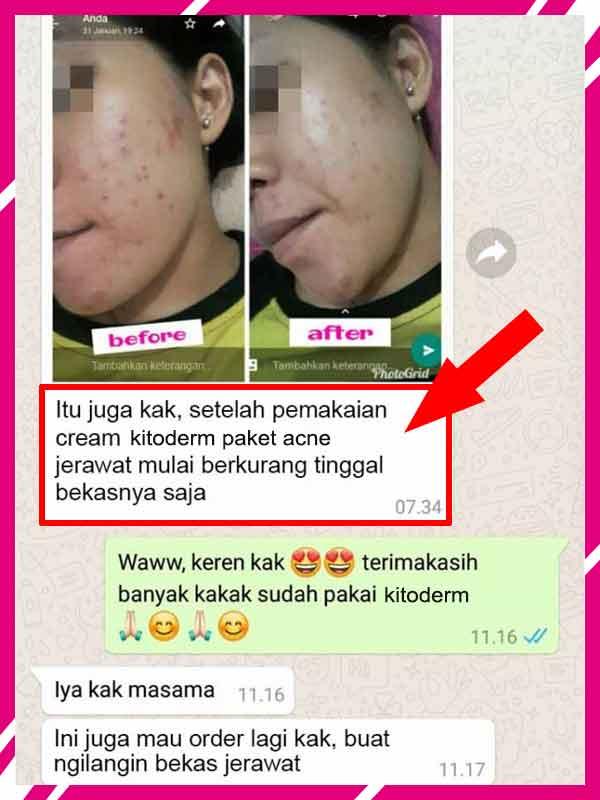 Jual Kitoderm Whitening Cream di Aceh Tengah
