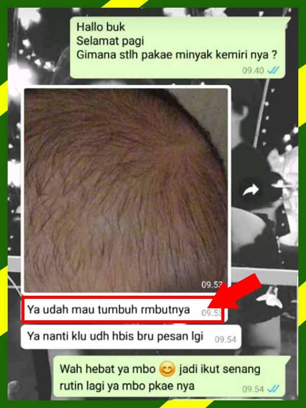 Review Minyak Kemiri Bmks Penumbuh Rambut Alami Mumtazah